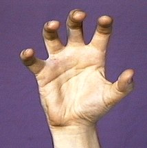 5: handshape illustrated